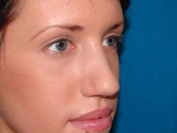 After RHINOPLASTY- Reduction, Crook Nose, SeptoRhinoplasty, Tipplasty